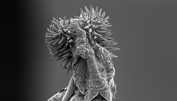 Svarvit mikroskopbild av fröbaggenhanes taggiga parningsorgan