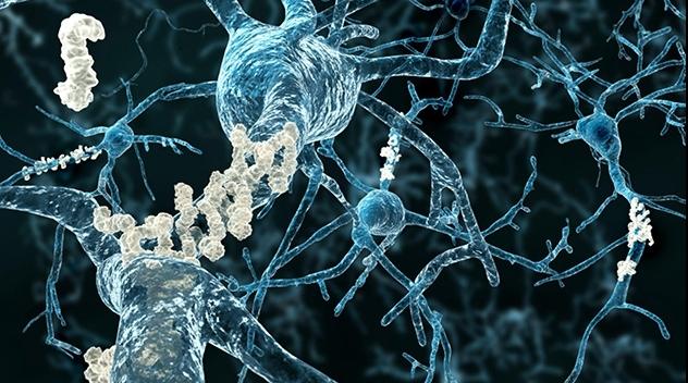 Nervtrådar med gula beläggningar av protein.