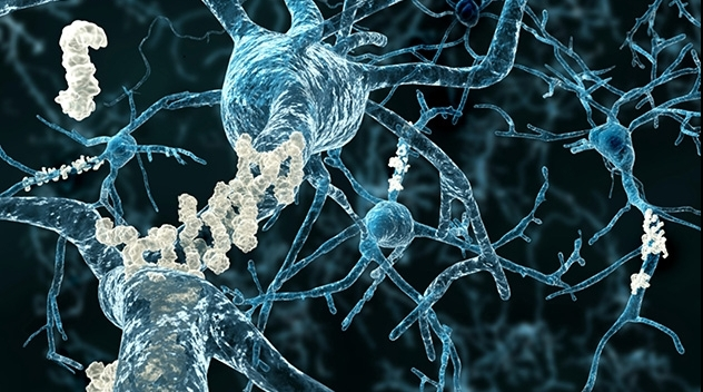 Amyloid-beta protein on nerve cells in the brain.