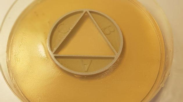 An agar plate.