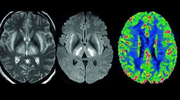 MR-bilder på hjärna
