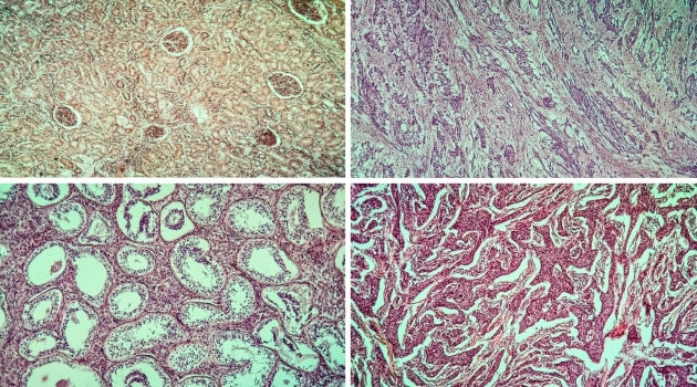 Four pathology images of human tissues.