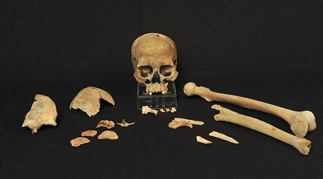 Delar av ett skelett utlagda på ett svart underlag.